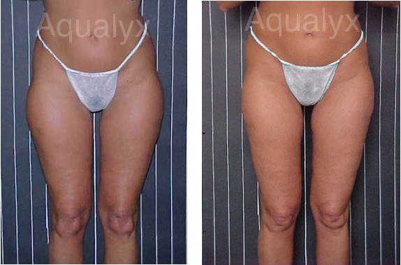 Aqualyx Before and After | Fat Reduction Peterborough | Fat Reduction Kings Lynn