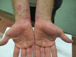 Psoriasis Before Dermalux