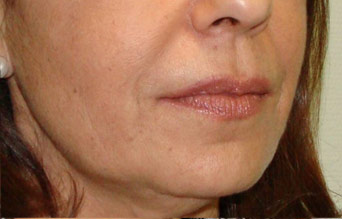 Lip injections in Peterborough