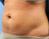 Aqualyx Belly After