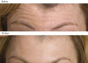 Anti-wrinkle Injections Peterborough
