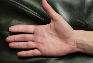 Dermatitis After Dermalux