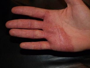 Dermatitis Before Dermalux