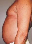 Aqualyx Belly Before