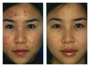 Obagi Blue Peel Before Uk Cosmetic Clinic