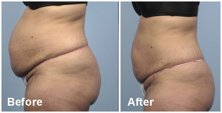 before and after Body Contouring Peterborough | Body Contouring Kings Lynn