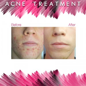 Before and After - Acne Treatment