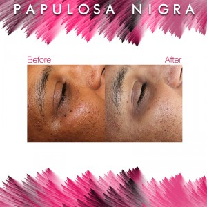 Before and After - Papulosa Nigra