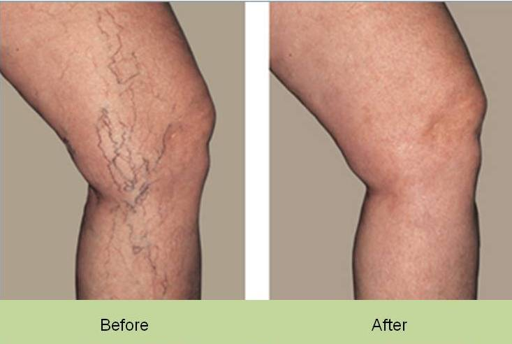 Face And Leg Veins Uk Cosmetic Clinic