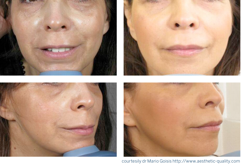 Platelet Rich Plasma Prp The Cosmetic Clinic Uk